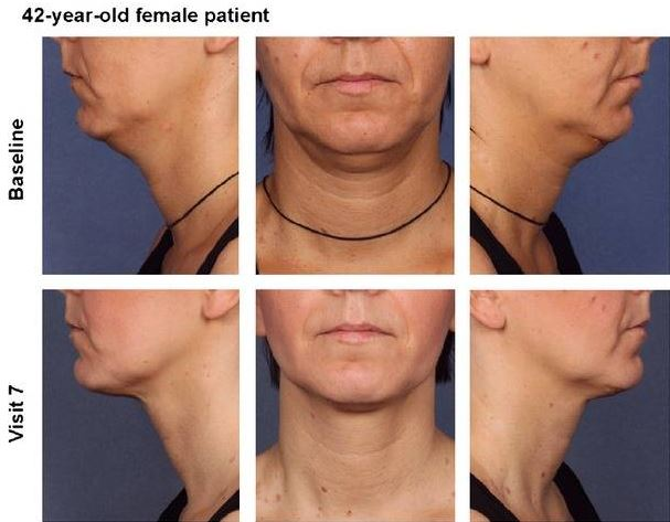 Kybella Before and After Pictures Charlotte, NC