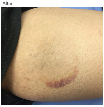 Vascular Before and After Pictures Charlotte, NC