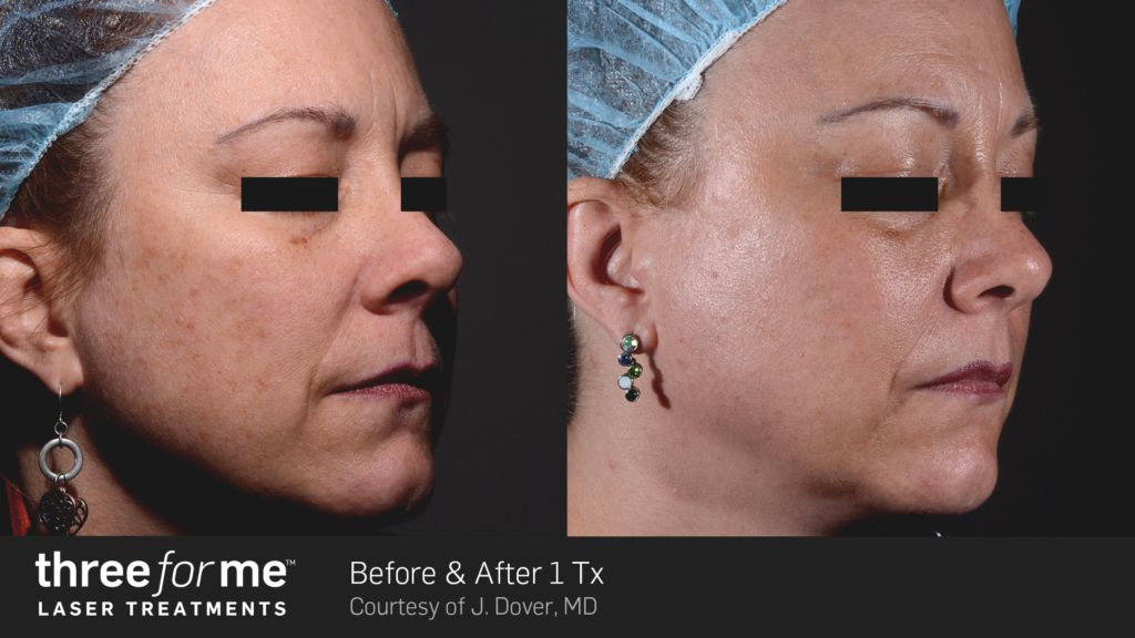 ThreeForMe-Before-&-After-Photo-1